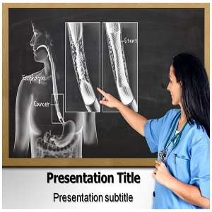 Esophageal Cancer PowerPoint Template   Esophageal Cancer